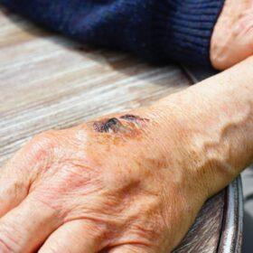 terapia-ranilor-cronice